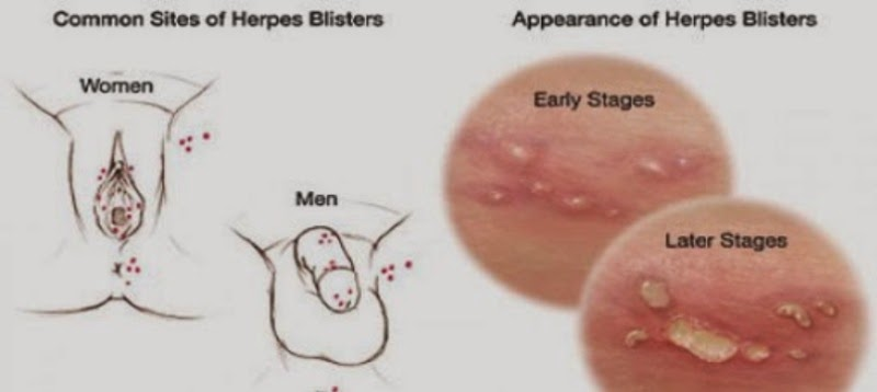 Herpes Genitalis - Sex ohne Kondom??! Herpes Forum