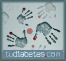 tudiabetes hands