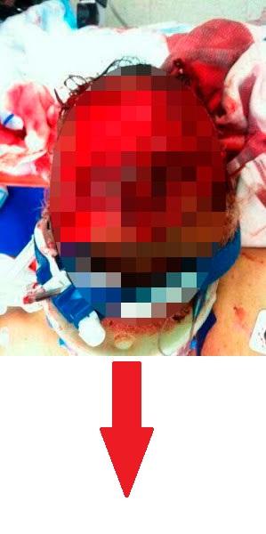 Wajah Lelaki Yang Dimakan Oleh Penagih Dadah Di Miami – 18 SG