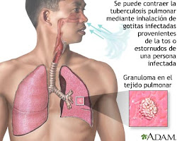Tuberculosis ADAM