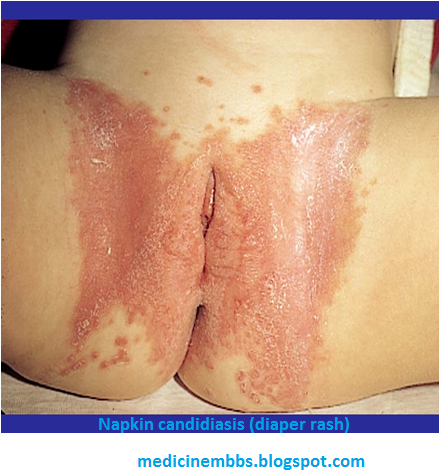 Rash in vaginal area - Dermatology - MedHelp