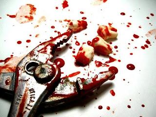 """Cuento de Terror 4: """"Visita al Dentista"""""""