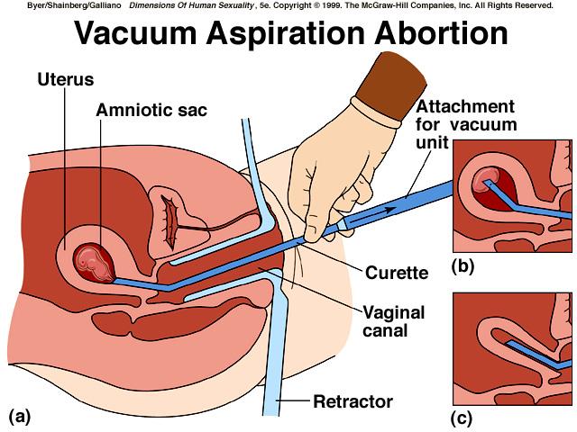 Обруч на ранних сроках беременности
