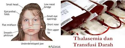 Obat Herbal Thalasemia Tanpa Transfusi Darah