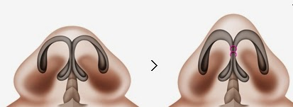 Operasi plastik hidung Wonjin-1