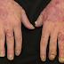 Importância do tratamento multidisciplinar na artrite psoriásica