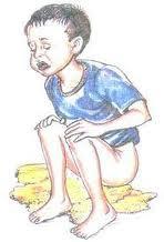 Karikatur Anak Yang Mengalami Diare