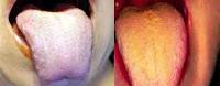 cavidad bucal, lengua saburral