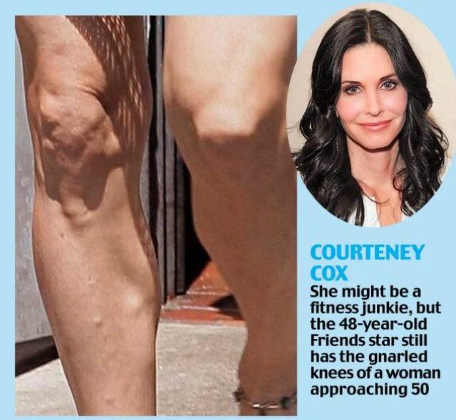 tips mengatasi kerutan lutut dengan vakum