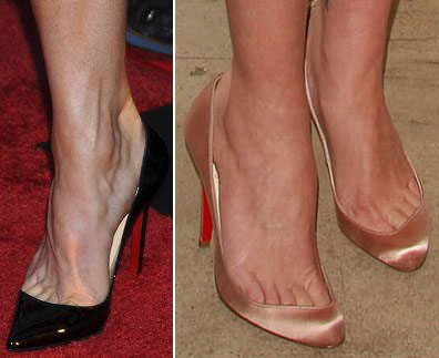 how to prevent overhanging toes in open toed shoes