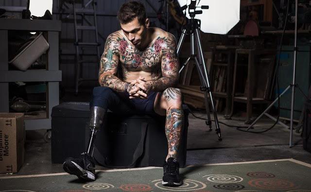 Alex Minsky, model berkaki palsu
