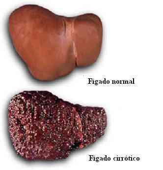 Imagem do Fígado
