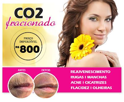 http://www.procorpoplastica.com.br/co2-fracionado.php