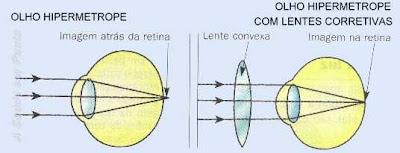Esquema da formação da imagem em um olho hipermetrope. A imagem se forma após a retina. É necessário uma lente convergente para corrigir o problema.