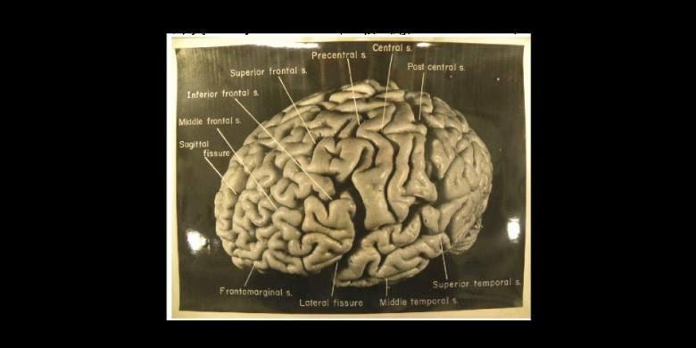 Inilah Bentuk Rupa Otak Einstein