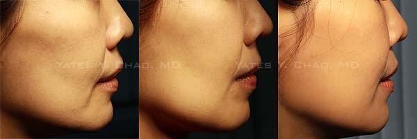 塑顏電波+3D聚左璇乳酸,六個月的持續低調變臉
