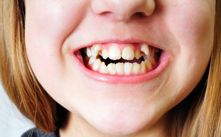 nieprawidłowa budowa zębów u dziecka
