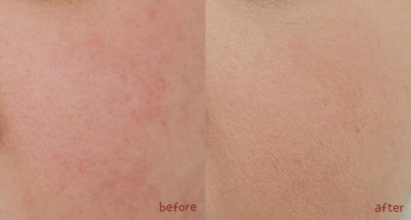 skin79 vital bb cream
