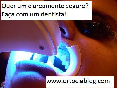 Clareamento Dental Com Fitas Clareadoras Pode Ser Cancerigeno Ortocia