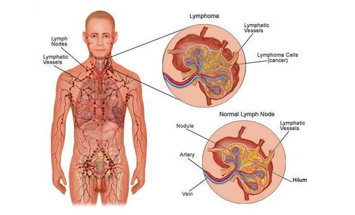 Olga Meninggal Dunia Karena Sakit Limfoma Kanker Kelenjar Getah Bening