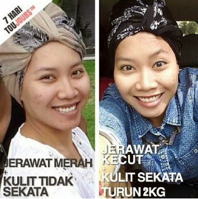 Testimoni Toujours Advanced Collagen Shots