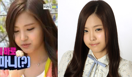 A_Pink_Naeun_Plastic_Surgery_We_Got_Married