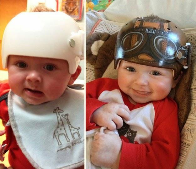 head shaping helmets