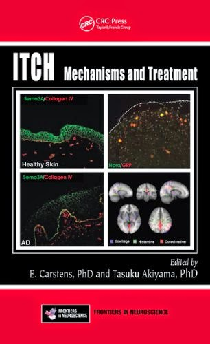 http://www.kingcheapebooks.com/2014/10/itch-mechanisms-and-treatment.html