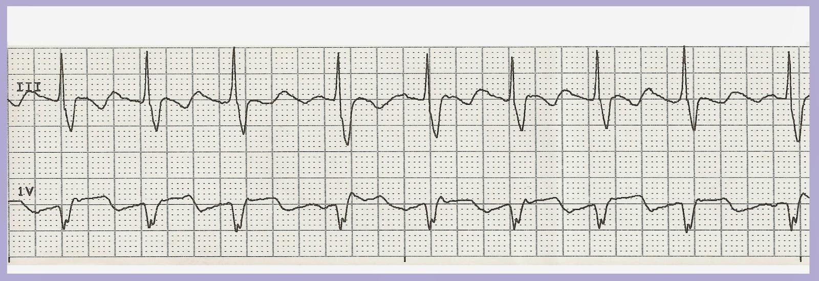 Float Nurse: Practice EKG Rhythm Strips 217