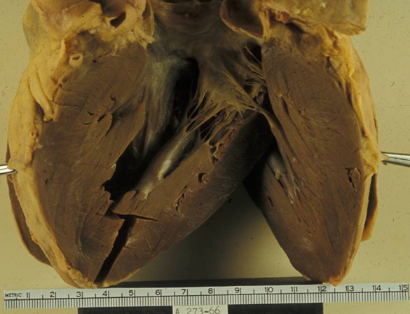 hypotrophic cardiomyopathy Feline hypertrophic cardiomyopathy (hcm) is a condition that causes the muscular walls of a cat's heart to thicken, decreasing the heart's efficiency and sometimes creating symptoms in other parts of the body.
