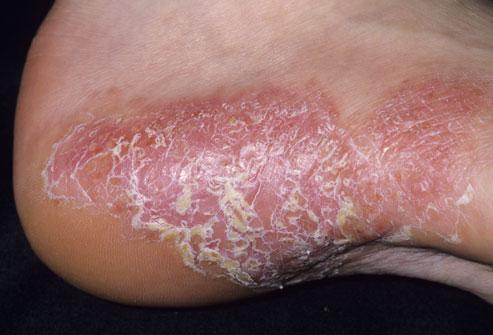 10 Macam Macam Penyakit Kulit Dan Gambarnya