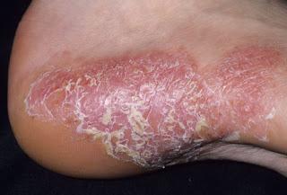penyakit kulit psoriasis