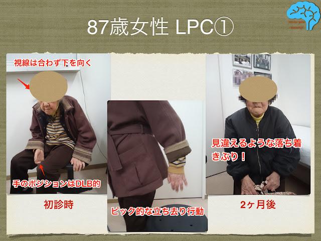 87歳女性LPC。表情や立ち去り行動の改善。
