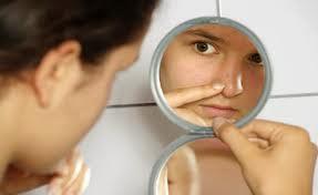 Cara sehat menghadapi timbulnya jerawat di wajah