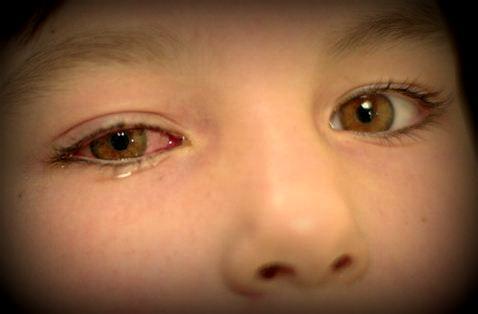 Tanda-tanda Gangguan Mata pada Anak-anak