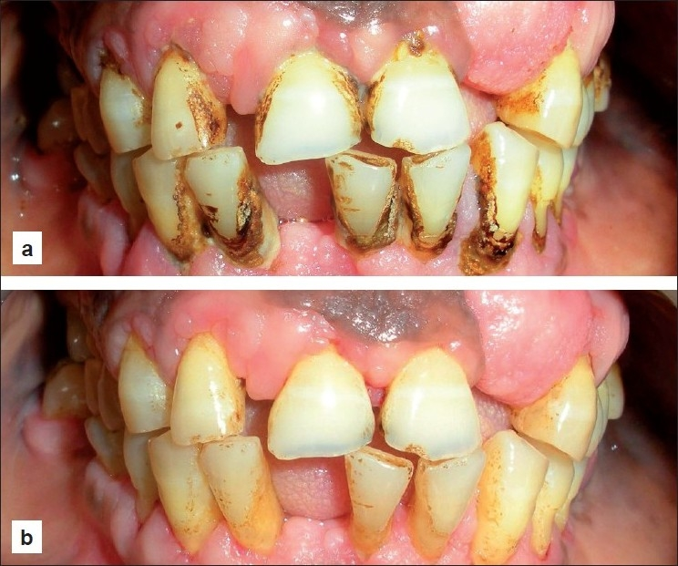 management of amlodipine influenced gingival overgrowth Clinical features of gingival pathology amlodipine is a  the first step in drug-induced gingival overgrowth management should be drug substitution (with another.