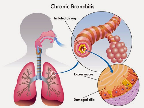bronchitis homeopathy treatment specialist hospital in velachery, chennai, tamil nadu