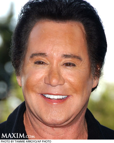 wayne newton plastic surgery before and after facelift and