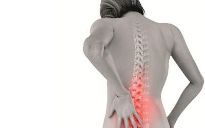 Tanda - Tanda Osteoporosis yang Sebaiknya Anda Waspadai