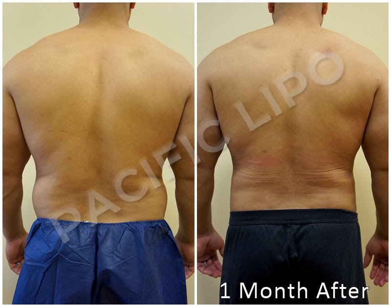 Pacific Lipo Lipo Procedure Love Handles