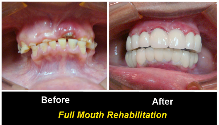 http://dentalimplantsindia.org/treatments-offered/dental-implants/full-mouth-rehabilitation/