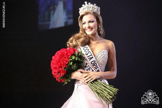 Miss Venezuela Universe 2014 Migbelis Lynette Castellanos Romero