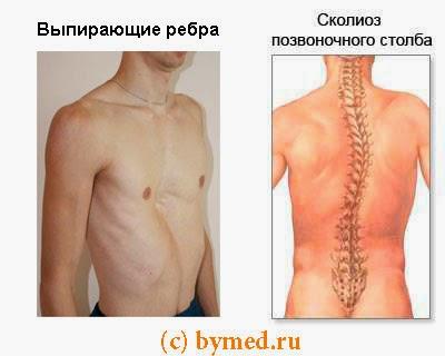 Сколиоз и выпирающие ребра