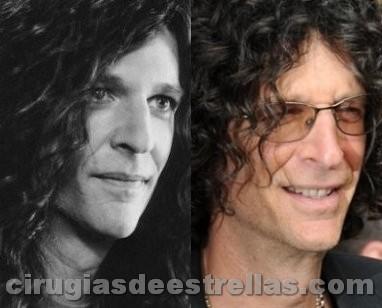 Howard Stern antes y después