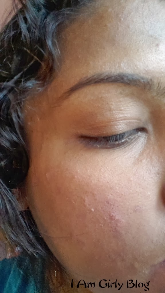 Tag:all natural skin care products for rosacea naturally,liquid makeup for rosacea cream,homemade face cream rosacea under eyes,the role of diet in acne and ...