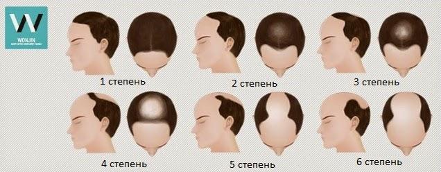 Почему волосы стали реже и тоньше