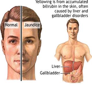 متلازمة جيلبرت 1286883934.jpg