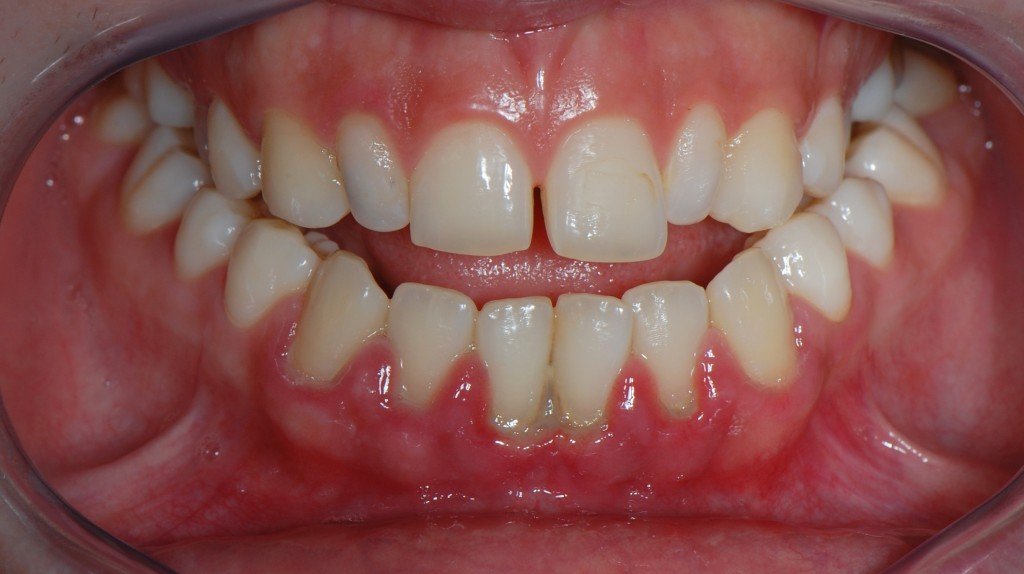 Herpes On Gum Pictures Photos