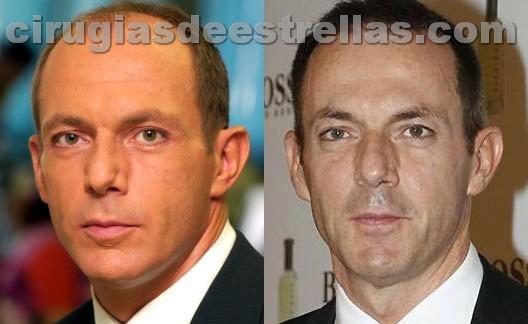 Hilario Pino antes y después