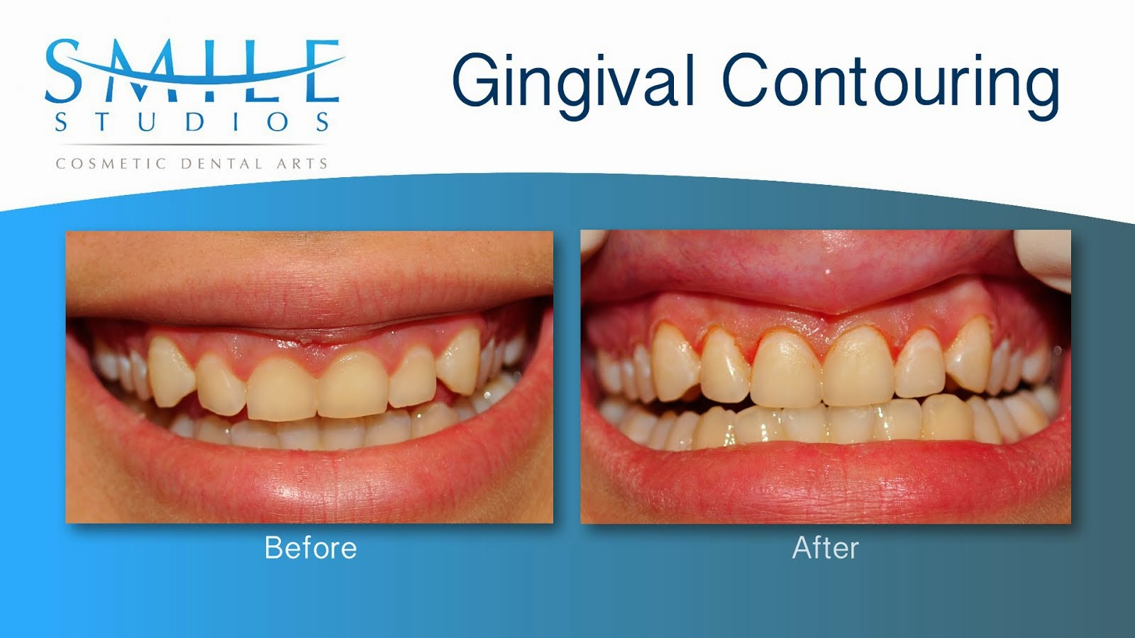 Gingival Contouring